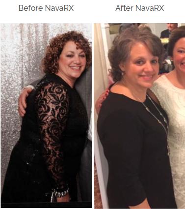 NavaRX Medical Weight Loss Program | Nava Health
