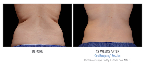 coolsculpting results | Nava Health & Vitality Center