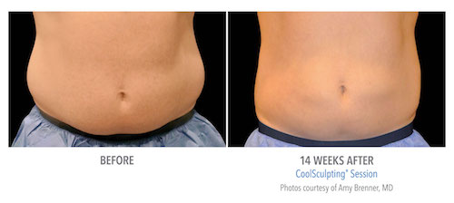 Nava coolsculpting results